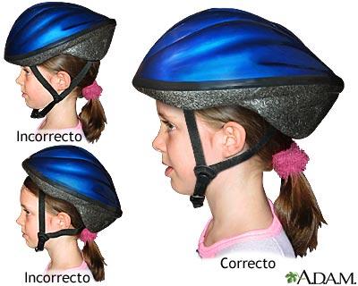 Uso correcto del casco